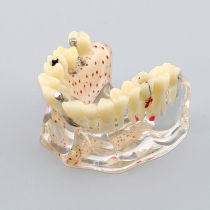 Dental osteoporosis and bad dental caries teeth study and demonstration model