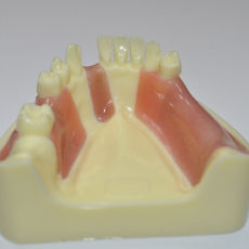 Dental absence of different teeth implant teeth model can exercise cut implant
