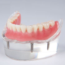 Details about  Dental implant restoration model with clear red gingival 4 pcs implants