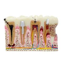 Dental Anatomy of dental caries plastic teeth model demonstration communication
