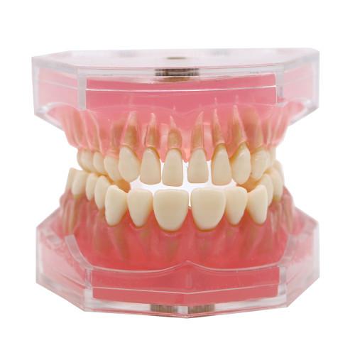 Dental standard orthodontic plastic teeth model 4004 with 28 removeable teeth