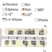 20/kit Dental orthodontic mental bracket brace standard roth slot 022 345hooks