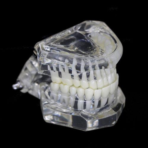 Plastic Study Teeth Model Demonstrate Comprehensive Repair Yellow Transparent