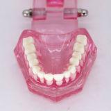 plastic study teeth model demonstrate Comprehensive repair pink Transparent