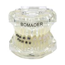 Dental orthodontic lab Plastic Study Teeth Model and ceramic bracket contrust