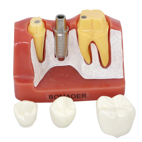 Dental Implant Analysis Crown Bridge Demonstration Teeth Model for Education