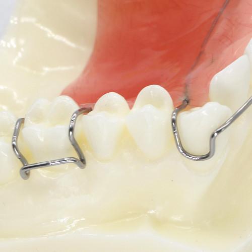 Dental Orthodontic Wearing Trainer Demonstration Plastic Teeth Model M#3007
